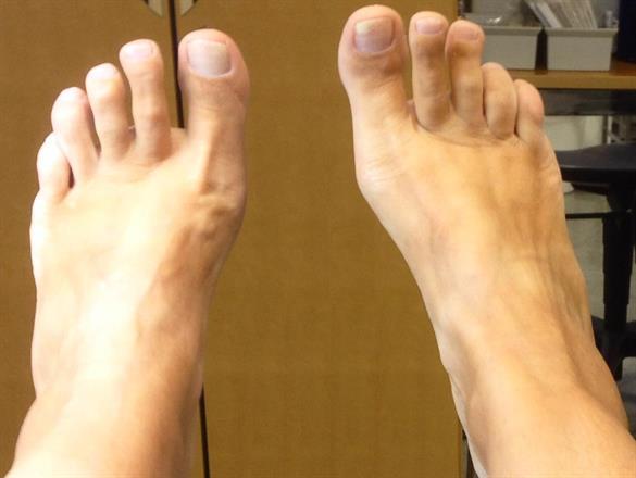 vuxna :-) fötter